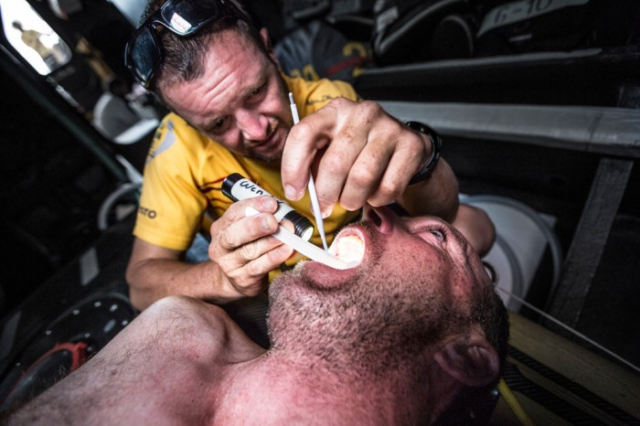 December 01, 2014. Leg 2 onboard Abu Dhabi Ocean Racing. Dr. Wendy Harmer is at it again this time repairing a sensitive tooth on Justin Slattery. Temporary filling work in the bow while floating along in the Doldrums. / Matt Knighton/Abu Dhabi Ocean Racing/Volvo Ocean Race
